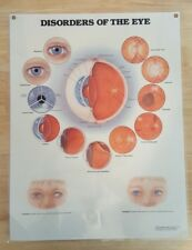 Anatomical Chart Company - Disorders of The Eye 1992 - Educational