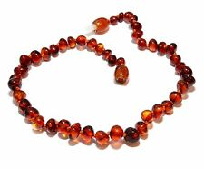 Genuine Baltic Amber Round Beads Polished Adult Anklet 25 - 26 cm Choose Color