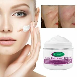 ELAIMEI Treatment Wounds Stretch Marks Skin Rebound Scarless Cream Scar Removal