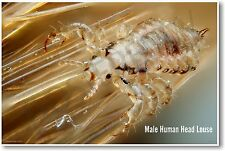 Male Human Head Louse - NEW Insect Wildlife POSTER