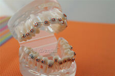 Dental Orthodontics Demonstration Clear Teeth Model with Metal Brackets B5-01