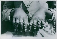 "Picture of human hands with a disease caused during wartime.""Abyssinia - Italy w"