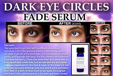 Natural Dark Circles Eye Bags Treatment for Lightening Eyelids Fade Serum