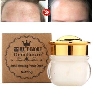Strong Removal Melasma Whitening Cream Freckle Speckle Sunburn Spots Pigment