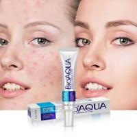 Removal Face Skin Care Acne Cream Spots Scar Blemish Marks Authentic