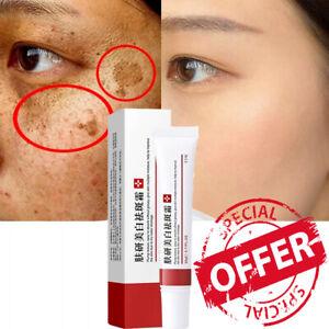 Whitening Freckle Cream Remove Melasma Acne Spot Pigment Melanin Dark Spots