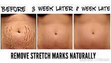 PDF How to Remove Stretch Marks A Stretch Mark Scar Removal Skin care treatment