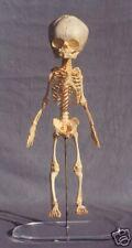 Human Fetus, Fetal Skeleton  REPLICA