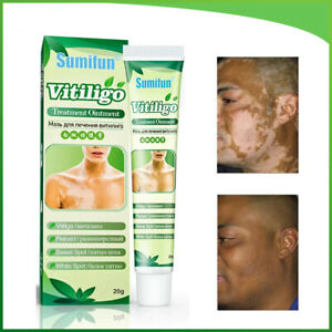 White Spot Cream Antibacterial Pigment Vitiligo Treatment Leukoplakia Relief