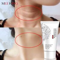Moisturizing Neck Cream Skin Care Anti wrinkle Whitening Firming Neck New