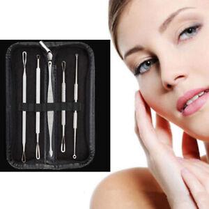 5pcs Blackhead Remover Tool Kit Spot Acne Pimple Comedone Extractor Popper