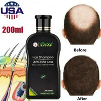 200ml Dexe Original Anti Hair Loss Shampoo Chinese Herbal Hair Growth Treatment-
