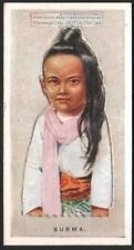 Burma Young Child With Pop-Up Image 1920s Ad Trade Card