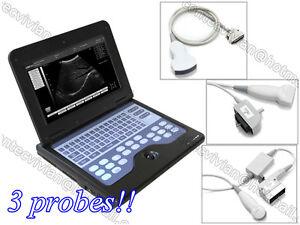 CONTEC CMS600P2 Portable Laptop Machine Digital Ultrasound Scanner+ 3 Probes,USA
