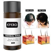 Hair Growth Serum Essential Oil Hair Loss Treatment Regrowth For Women Men 20ml