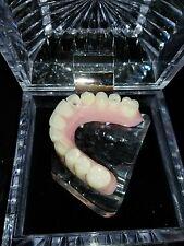 All on 5 maxillary Implant Overdenture demo Model Dental Kilgore Max denture