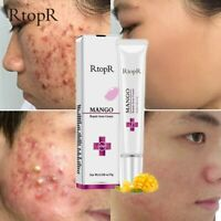 Acne Treatment Face Cream Blackhead Repair Gel Oil Control Shrink Pores Scar