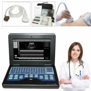 Portable Ultrasound Scanner Laptop Machine 3.5Mhz Convex Probe Scanner System,CE