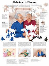 A3 Medical Poster – la maladie d'Alzheimer (Texte Livre Anatomie Pathologie médecin)