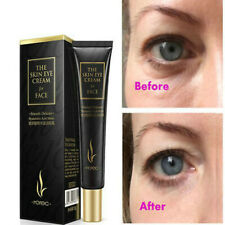 Eye Cream Gel&For Dark Circles Puffiness Wrinkles Bags Effective Cool Anti-Aging