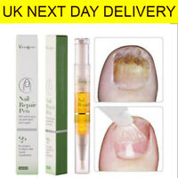 5 ml Nail Fungal Treatment Pen Anti Fungus Infection Biological Repairs Solution