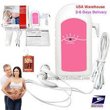 FDA Baby Sound A Pocket Fetal Doppler Baby Heart Beat Prenatal Heart Monitor,USA