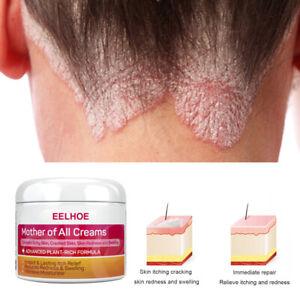 Skin Psoriasis Cream Dermatitis Eczematoid Eczema Ointment Treatment Psoriasis g
