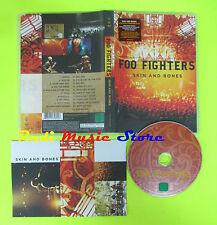 DVD FOO FIGHTERS Skin and bones 2006 eu RCA 88697030609 mc lp vhs cd(DM1)