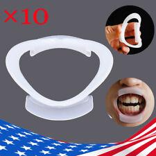 10 Pcs Dental Intraoral Cheek Lip Retractor O Shape Mouth Opener Teeth Whitening