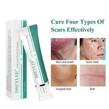 30g Acne Scar Removal Cream Skin Repair/Scar Remover/Fade Stretch Marks