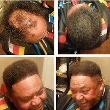 Hair Illusion Hair Fibers Hold Bond Spray For Hair Loss Bald Thin Hair