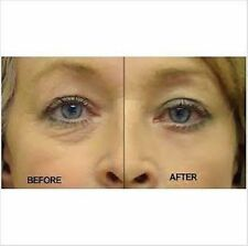 Micro Current Bio EYE LIFT dark circles bags tired wrinkle fatigue skin tone RF