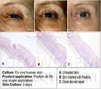 EyeComplex2- Under Eye Volume Increaser/Collagen Booster ~Matrixyl 3000+Collaxyl