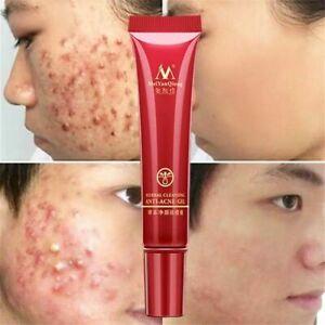 Fade Acne Spots Oil Control Whitening Moisturizing Face Skin Care Cream 15G