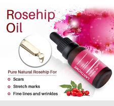 Rosehip Oil Moisturizing Essence Lighten Acne print Scars Stretch Marks 10ml Z8y