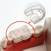 los dientes Ayuda para dormir El bruxismo Dejar de roncar Dental Mouth Guard