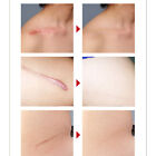 Silicone Scar Sheet Silica Gel Patch Trauma Acne Scars Removal For Skin Repair