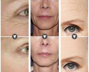 Hyaluronic Acid + Matrixyl 3000 Peptide SERUM ,Face Eye Anti-Aging Wrinkle Serum