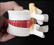 Dental 1:1.5 Medical Spine Lumbar Disc Herniation Model 1 Pcs New Arrival