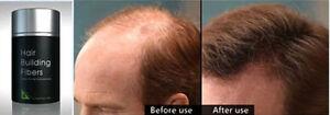 2 DEXE Hair Building Fibres Bald Spot Concealer Loss 44g Dark Brown + SPRAY