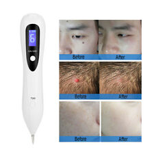 Electric Laser Freckle Mole Warts Dot Tattoo Eraser Removal Pen For Age Spot 8