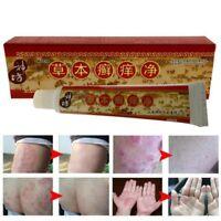 Chinesische Kräuter Psoriasis Salbe Hautcreme Behandlung