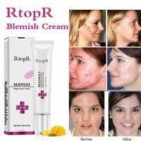 RtopR Blemish Cream Pimple Scar Acne Mark Spots Removal