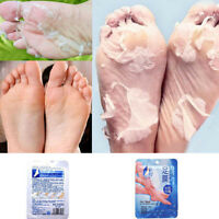 EXFOLIATING FOOT MASK PEEL Removes Dead Skin Feet Baby Soft Milk Bamboo Vinegar