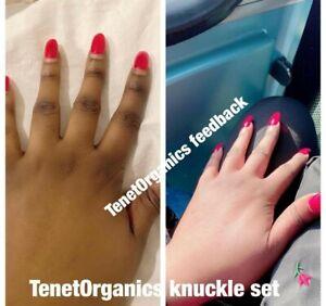 Knuckle Remover Set