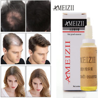 AMEIZII Hair Growth Essence Hair Loss Treat Dense Hair Fast Sunburst Liquid 20ml
