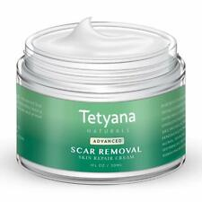 Scar Removal Cream Advanced Treatment for Old New Scars from Cuts Stretch