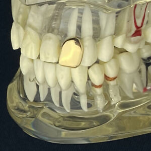Real 10K Gold Tooth One Single Cap Pre Made Slug K9 Canine Teeth Instant Grillz
