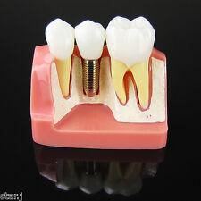 Dental Implant Analysis Crown Bridge Demonstration Teeth Model