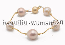 Z8570 16mm Almost-Round Lavender Pink Edison Keshi Pearl Bracelet 8inch
